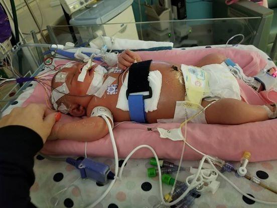 Hy hữu trẻ sơ sinh tử vong vì lây viêm màng não qua nụ hôn - 1