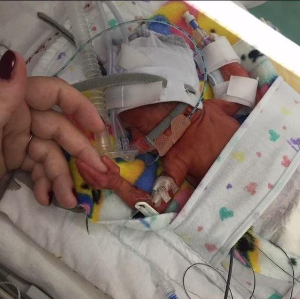 """Em bé """"bé nhất hành tinh"""" được phẫu thuật tim thành công - 3"""