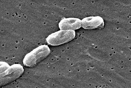 Vi khuẩn Burkholderia pseudomallei (nguồn:http://diendanykhoa.com)