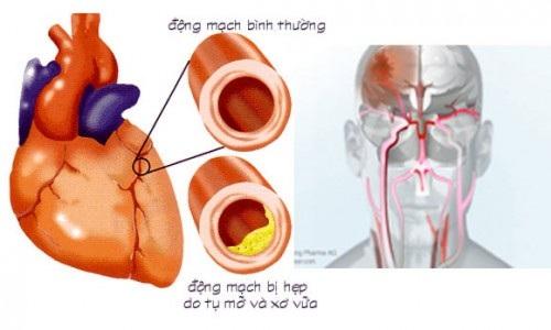Rối loạn mỡ máu làm tăng nguy cơ mắc các bệnh lý tim mạch.
