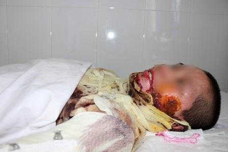 Nhiều vụ bỏng thương tâm đã xảy ra xuất phát từ sự sơ ý của chính nạn nhân