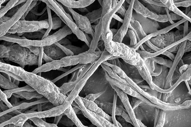 Phương thức mới đưa chất chống cháy vào trong pin lithium ion - 1