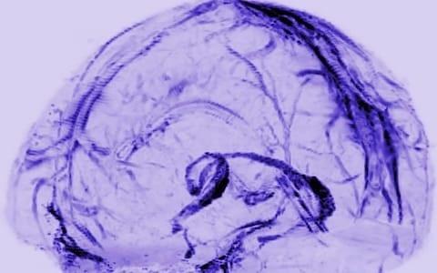 Phát hiện mới về cơ chế loại bỏ chất độc hại của não - 1