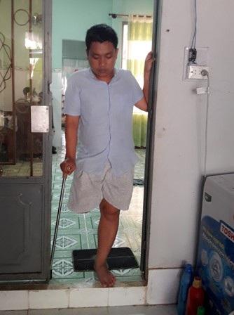 Hoàng Lâm vĩnh viễn mất đi 1 chân sau chấn thương phần mềm