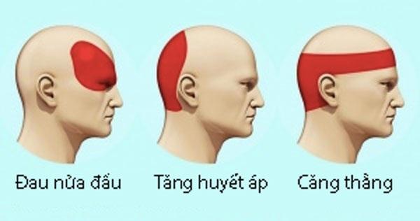 Loại bỏ cơn đau đầu không dùng thuốc trong 5 phút - 1