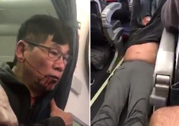 Ông David Dao bị lôi đi trên máy bay Mỹ (Ảnh: Twitter)