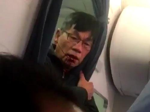 Bác sĩ David Dao bị thương sau khi bị lôi thô bạo khỏi máy bay của United Airlines hôm 9/4. (Ảnh: Getty)