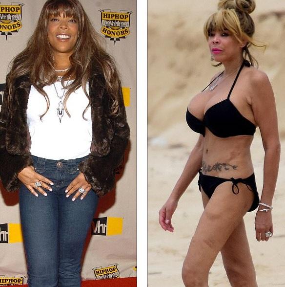 Cô đã hút mỡ và phẫu thuật thẩm mỹ để có vẻ ngoài búp bê như hiện nay