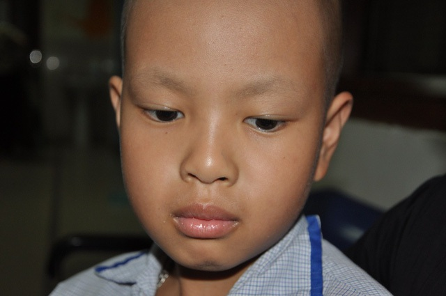 Cậu bé Nghĩa bị ung thư máu hiện phải điều trị tại khoa Máu trẻ em - Viện huyết học truyền máu TW.