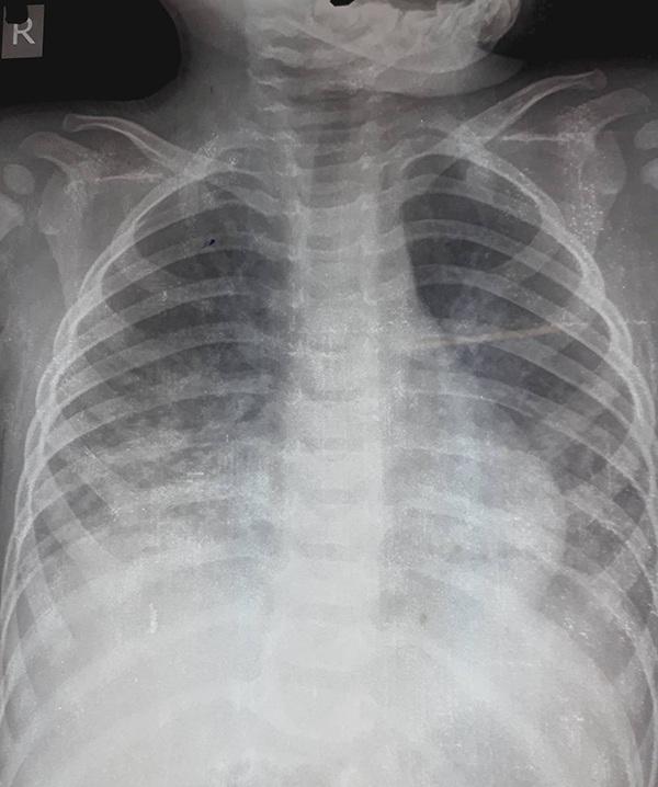 Hình ảnh X-Quang phổi bệnh nhi bị tổn thương do uống dầu hỏa.