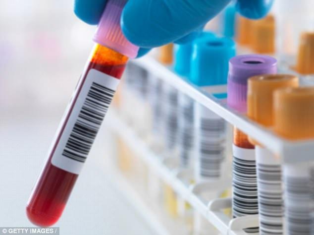 Cho đến nay, việc điều trị tập trung vào HIV trốn trong tế bào T - một loại tế bào bạch cầu.