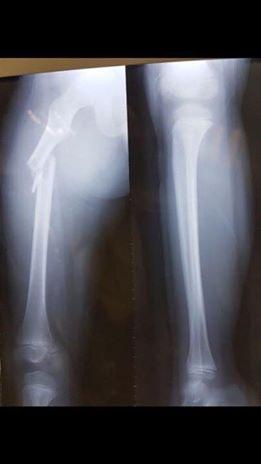 Tai nạn xe tông trong Trường tiểu học Nam Trung Yên đã khiến xương đùi cháu Kiên bị gãy, giám định thương tật là 32%