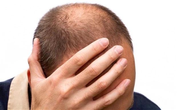 Cảnh báo: Thuốc chữa hói đầu gây rối loạn cương dương kéo dài - 1