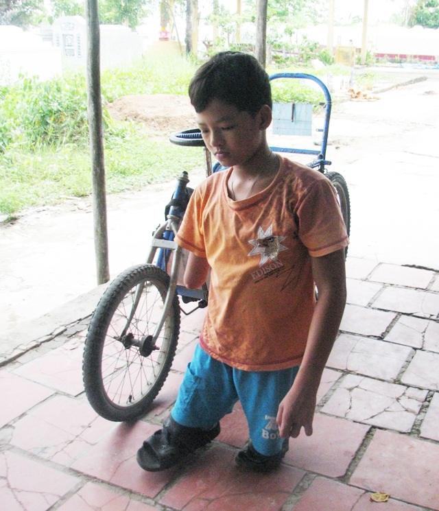 Em Phan Quốc Thuận đã bị khuyết tật bẩm sinh.