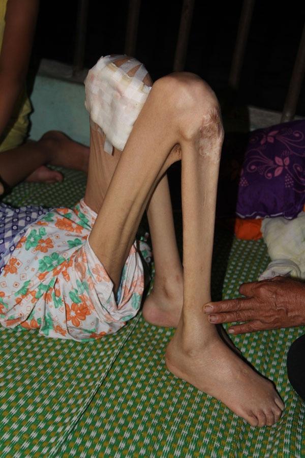 Đôi chân của chị cũng gầy khô và đang hoại tử.