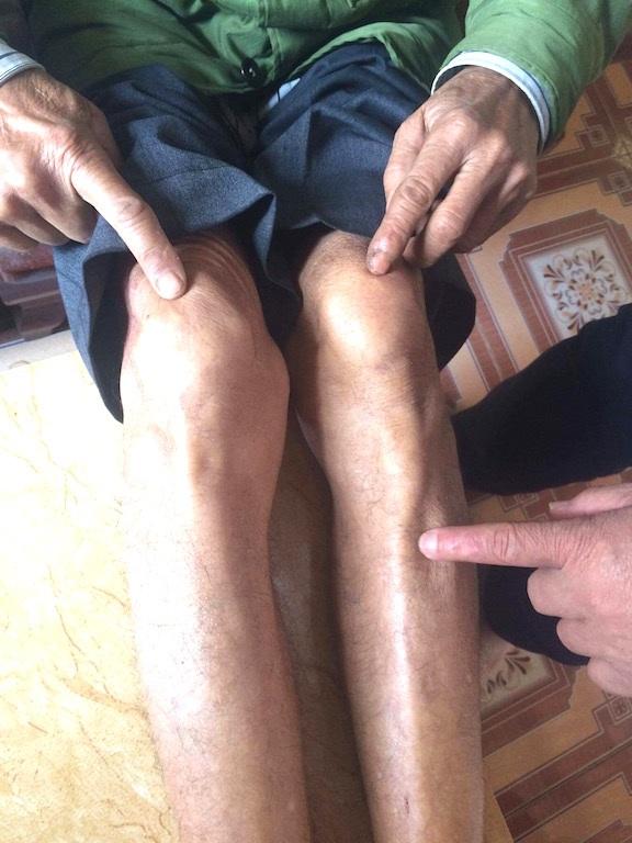 Đôi chân ông Trác bị xâu dây thép nên không thể đi lại như người bình thường.