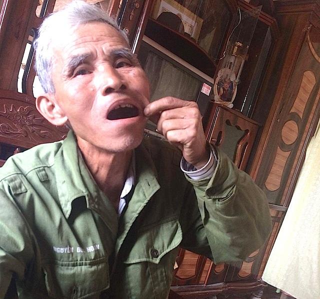 Hàm răng của ông không còn nguyên vẹn vì bị giặc nhổ đi vì không chịu khai báo.