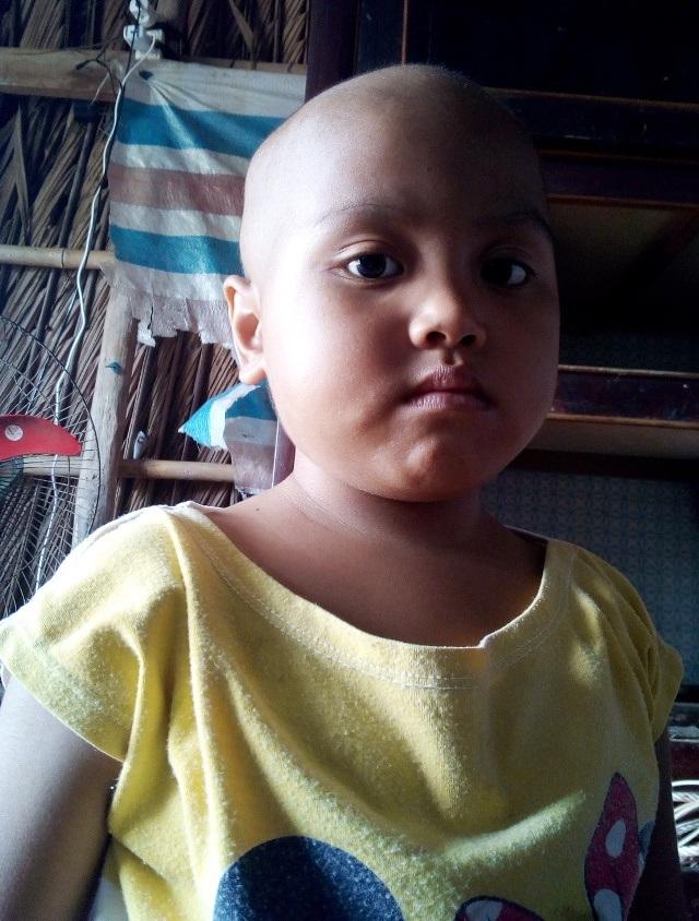 Ám ảnh ánh mắt của bé 5 tuổi người dân tộc Khmer bị ung thư máu - 4