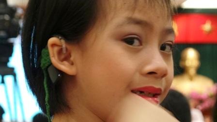 TPHCM: Miễn phí cấy ốc tai điện tử cho trẻ dưới 7 tuổi - 1