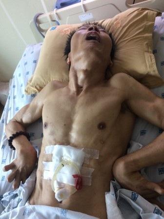 Sau thủ thuật, ông Trịnh Quang Sơn bị tai biến sống thực vật hơn 1 năm qua