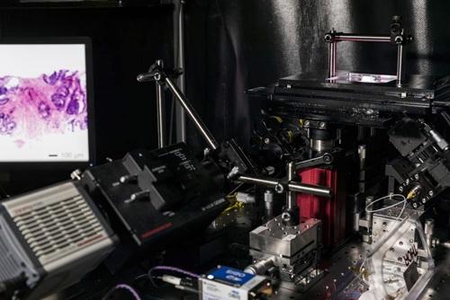 Kính hiển vi mới có thể soi quét khối u khi phẫu thuật. Ảnh: Đại học Washington.