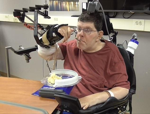 Đột phá công nghệ giúp tay người liệt cử động - 2