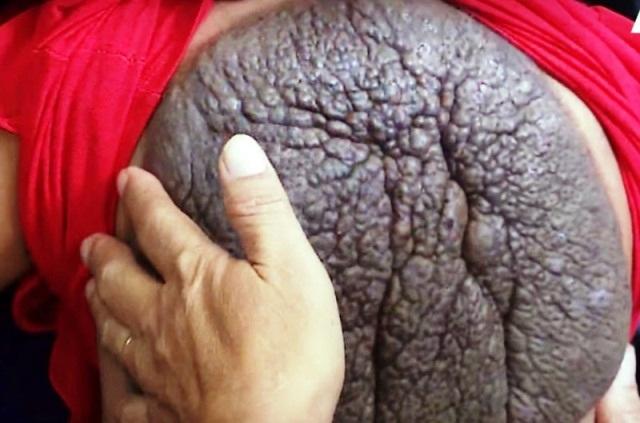 Mai rùa trên lưng cháu Thắm trước khi phẫu thuật.