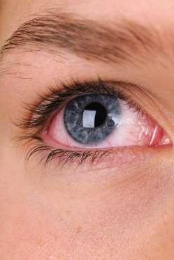 """12 dấu hiệu bệnh mà bạn phải """"hỏi"""" mắt - 11"""