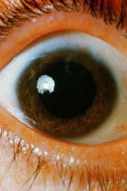 """12 dấu hiệu bệnh mà bạn phải """"hỏi"""" mắt - 1"""