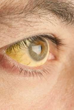 """12 dấu hiệu bệnh mà bạn phải """"hỏi"""" mắt - 9"""