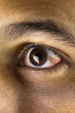 """12 dấu hiệu bệnh mà bạn phải """"hỏi"""" mắt - 8"""