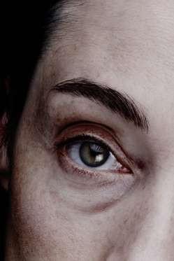 """12 dấu hiệu bệnh mà bạn phải """"hỏi"""" mắt - 7"""