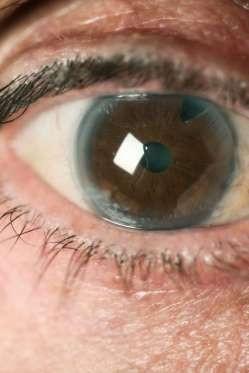 """12 dấu hiệu bệnh mà bạn phải """"hỏi"""" mắt - 4"""