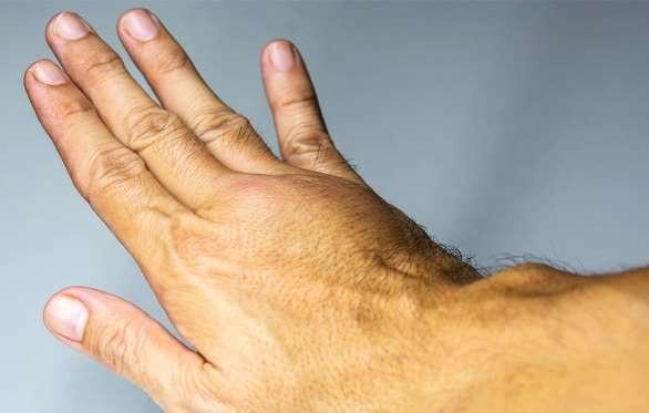 6 báo hiệu cơ thể có cục máu đông - 1