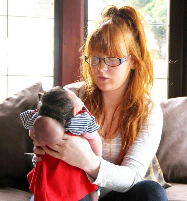 Phút cuối cùng của bà mẹ đau khổ với con gái mới sinh có não ngoài hộp sọ - 2