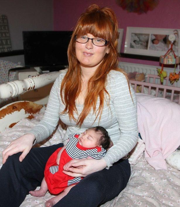 Phút cuối cùng của bà mẹ đau khổ với con gái mới sinh có não ngoài hộp sọ - 3