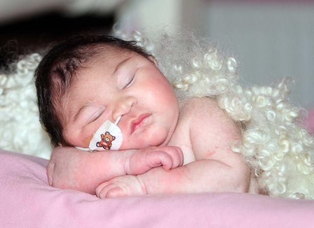 Phút cuối cùng của bà mẹ đau khổ với con gái mới sinh có não ngoài hộp sọ - 5