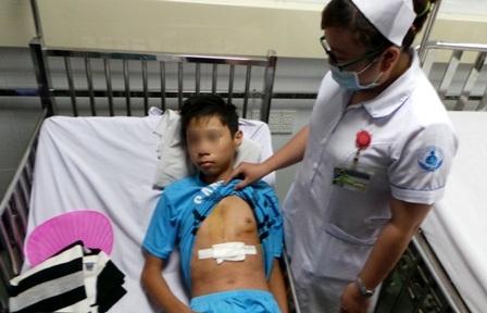 Cậu bé suýt mất mạng vì bị cây kim nằm trong gối đâm vào ngực