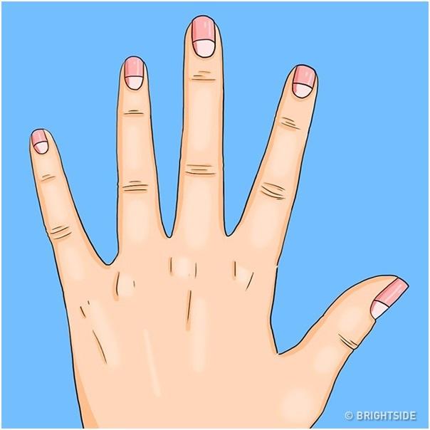 Nhận biết tình trạng sức khỏe nhờ hình bán nguyệt trên móng tay - 3
