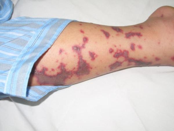 Bị sốt đi khám, cô gái trẻ phải cách ly ngay vì bệnh truyền nhiễm nguy hiểm - 1