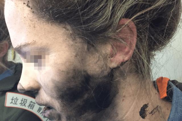 Tai nghe không dây phát nổ khiến người phụ nữ này bị cháy đen khuôn mặt