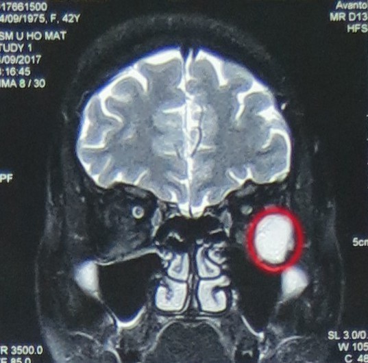 Khối u hốc mắc là nguyên nhân khiến thị lực bệnh nhân giảm, đau nhức, chảy nước mắt.
