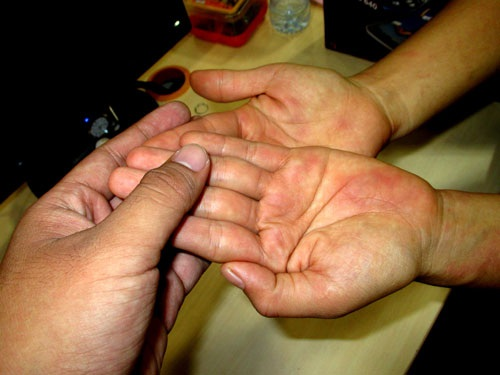 Một trường hợp tổn thương da khiến người bệnh lầm tưởng là những dấu xuất huyết dưới da nhưng thật ra là bị đỏ da do dị ứng