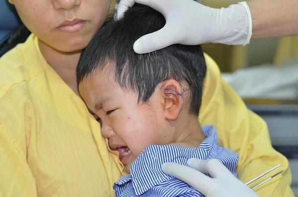 Một bé trai 3 tuổi bị tôn cắt ngang vành tai - 1