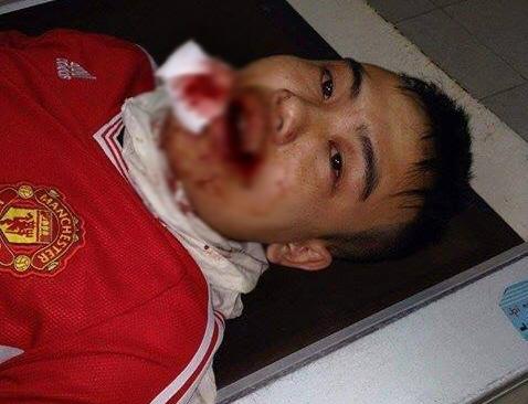 Chồng chị Phương bị hành hung phải nhập viện cấp cứu.