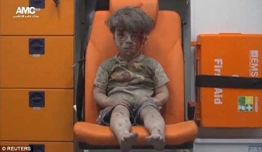 Hình ảnh bé Omran hồi năm ngoái trở thành biểu tượng chiến tranh ở Syria. Ảnh: Reuters