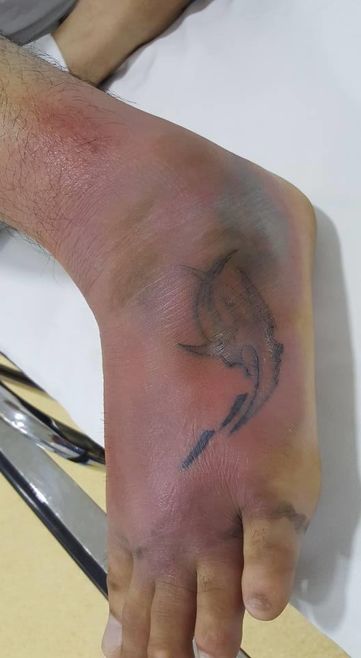 Bệnh nhân nam 26 tuổi đến BV trong tình trạng bàn chân có hình xăm viêm tấy, mưng mủ. Ảnh do BS cung cấp