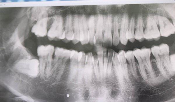 Răng khôn đâm thủng má, cô gái trẻ phải bỏ thai - 1