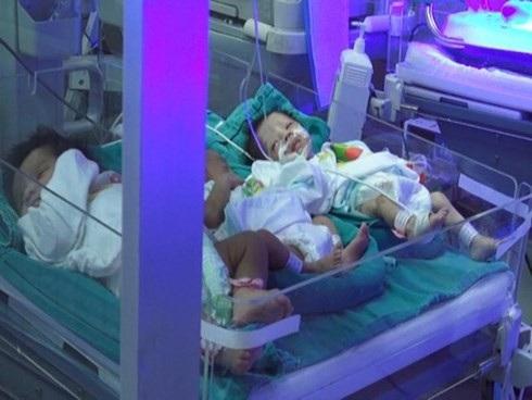 Các trẻ sinh non chuyển từ BV Sản Nhi Bắc Ninh lên đang điều trị tích cực tại BV Bạch Mai.