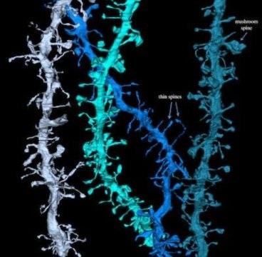 Hình ảnh  phân giải cao cho thấy cách não phục hồi trong lúc ngủ - 1